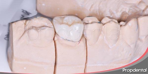 empastes o incrustaciones de porcelana