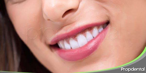 esmalte dental que le ayuda y que le perjudica