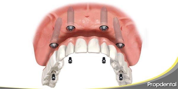 factores que determinan el precio de un implante dental