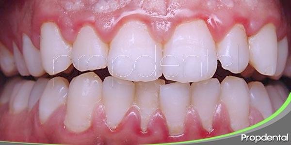 fases de la enfermedad de las encías