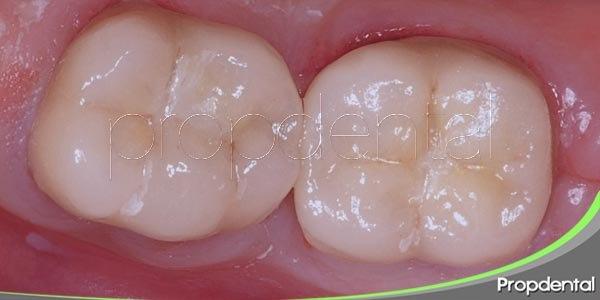 funcionalidad de las coronas dentales