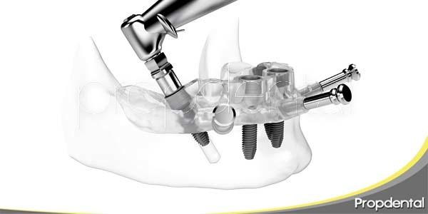 inserción de implantes a través de férula guiada