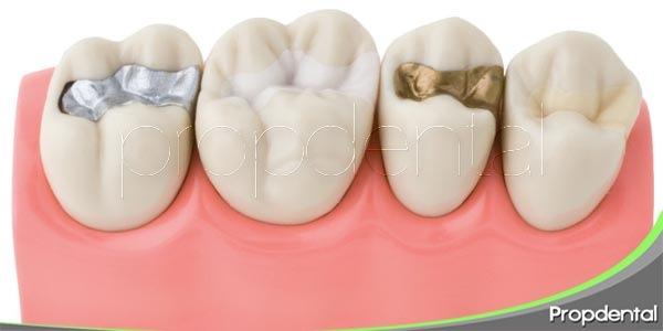 la adaptación a las restauraciones dentales