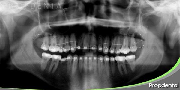 la necesidad de las radiografías dentales regulares