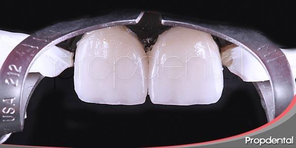 las diferentes opciones de estética dental