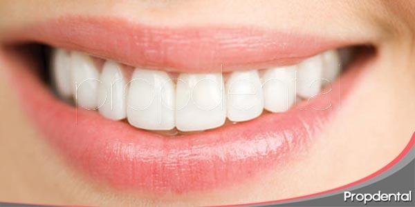 los procedimientos de estética dental