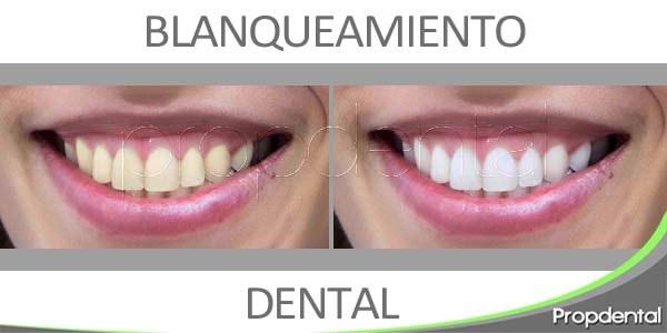 mejora de la imagen mediante un blanqueamiento dental