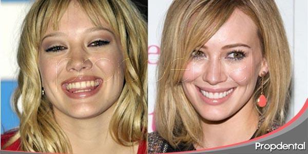 odontología estética: visita obligada para las celebrities