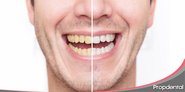 pasos de un blanqueamiento dental profesional