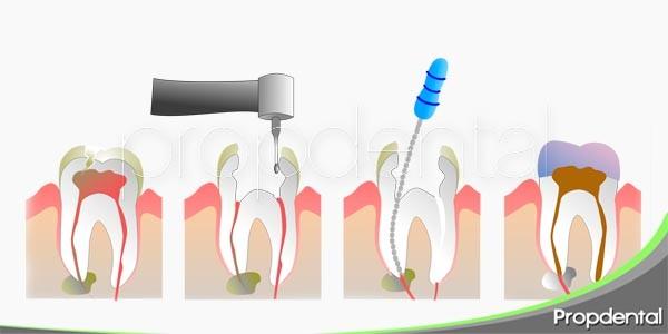pasos de un tratamiento de endodoncia