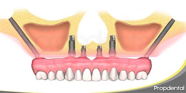 preguntas frecuentes sobre los implantes cigomáticos