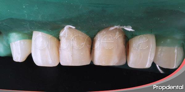 preparación y colocación de una carilla de composite