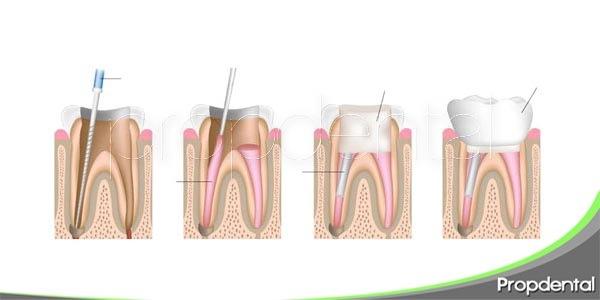 razones por las cuales fracasa una endodoncia