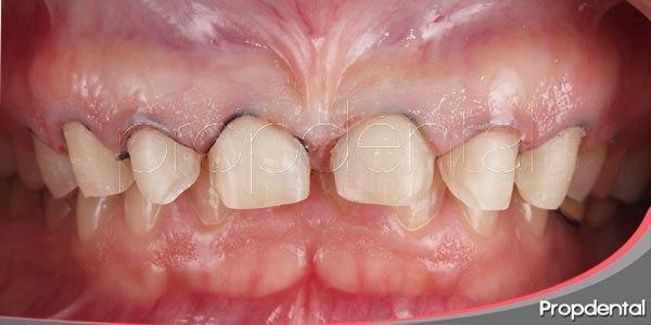 razones por las que se realiza el tallado dental en las carillas