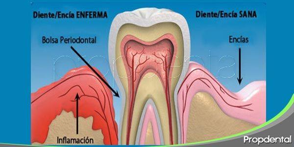 relación entre la piorrea y la pérdida de dientes