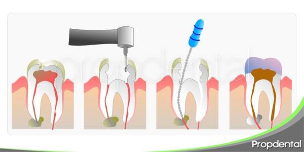 salva el diente con la endodoncia