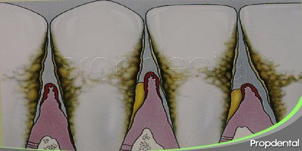 síntomas de la periodontitis en fase avanzada