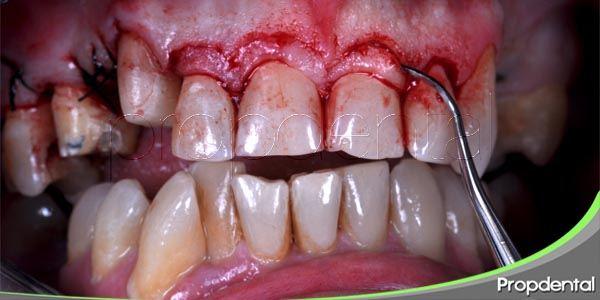 técnicas quirúrgicas para solucionar una enfermedad periodontal