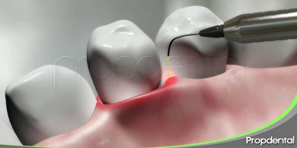 tratamiento conservador de la enfermedad periodontal