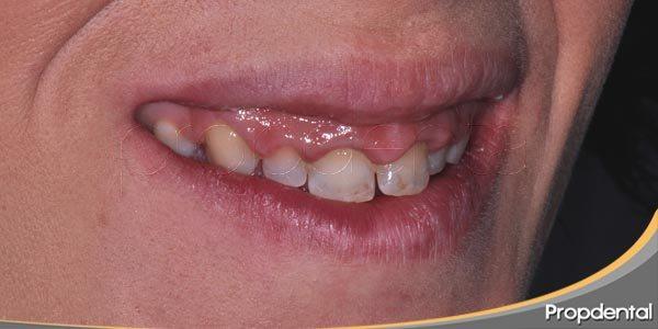 tratamientos para la sonrisa gingival
