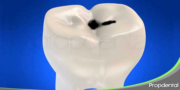 tratamientos preventivos para la caries dental