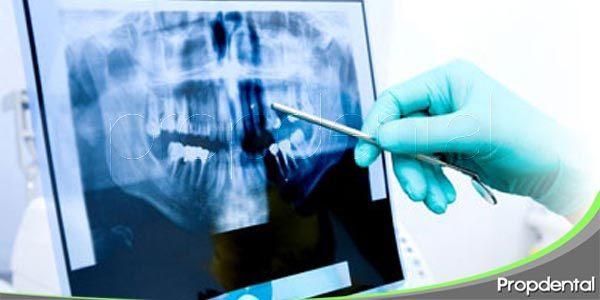 ventajas de la radiología digital