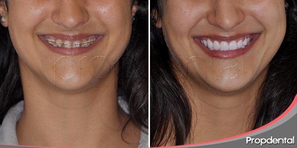 características de la prótesis dental de zirconio