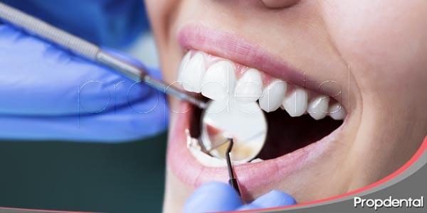 ¿carillas de porcelana o adhesión dental?