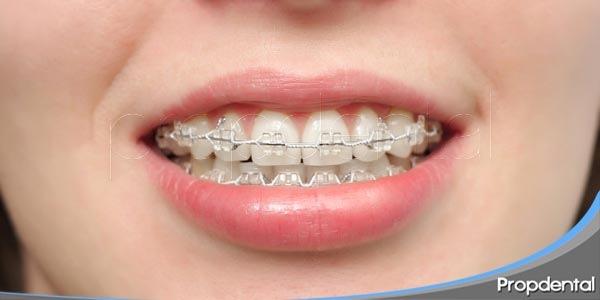 casos en los que se recomienda la ortodoncia
