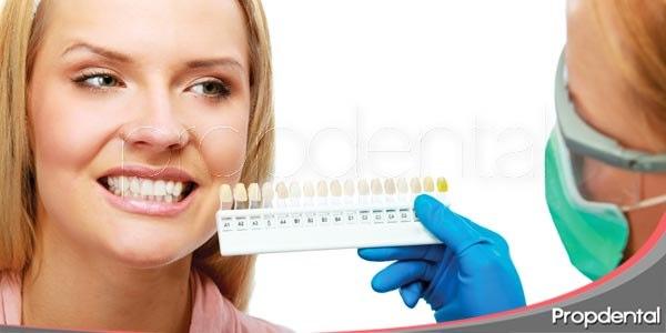 conductas previas a un blanqueamiento dental