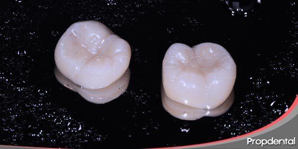 conocer la función de las incrustaciones dentales
