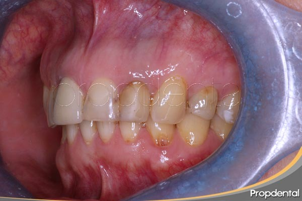 contraindicaciones blanqueamiento dental