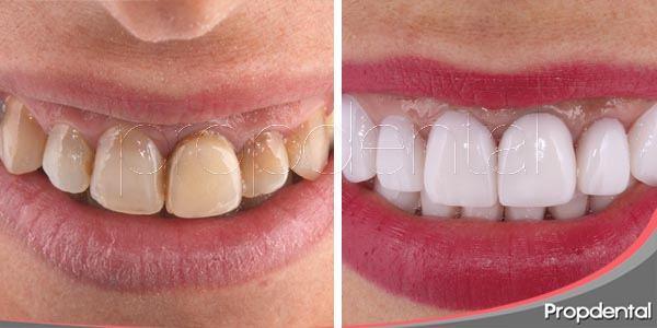 eliminar las manchas dentales con carillas