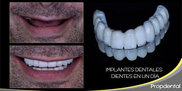 implantes dentales: de 0 a 100 en 5 minutos