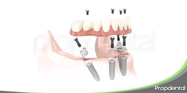 Lo que has de saber sobre los implantes dentales