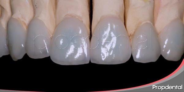 ¿ortodoncia instantánea? llámale carillas