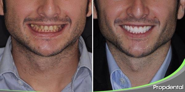 particularidades de la agenesia dental
