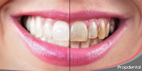 ¿por qué se manchan los dientes?