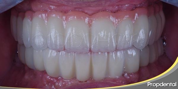 postoperatorio en intervención con implantes