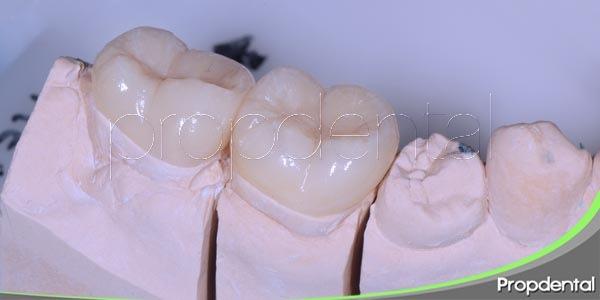 principales ventajas de las incrustaciones dentales