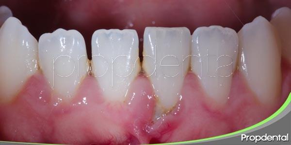 ¿puede afectarme la enfermedad periodontal?