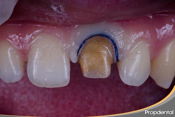 tallado dental para corona