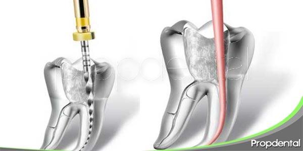 técnica rotatoria en endodoncia