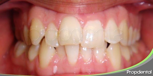 tipos de apiñamiento dental