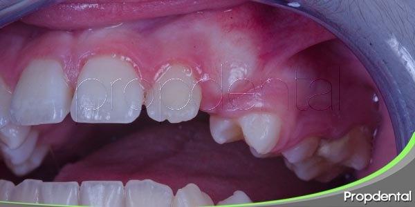 tipos de infecciones dentales