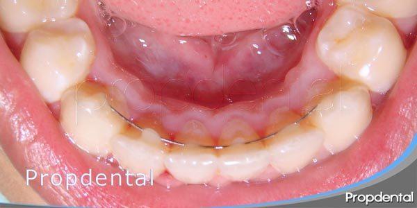 tipos de retenedores de ortodoncia