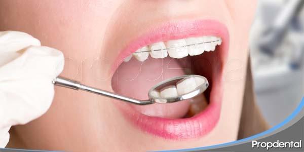 tipos de tratamientos ortodóncicos