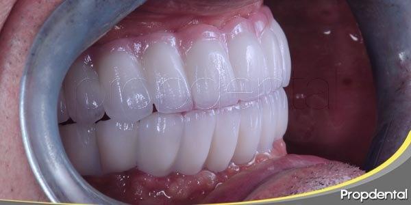 8 consejos útiles tras la colocación de un implante