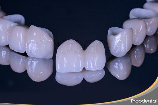 adhesión y coronas dentales