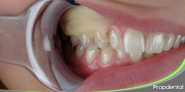 apósitos periodontales